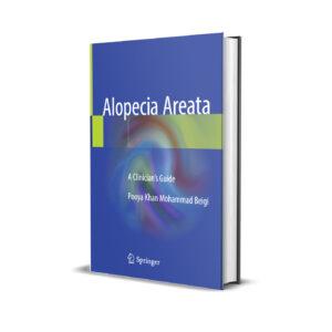 A Clinician's Guide to Alopecia Areata