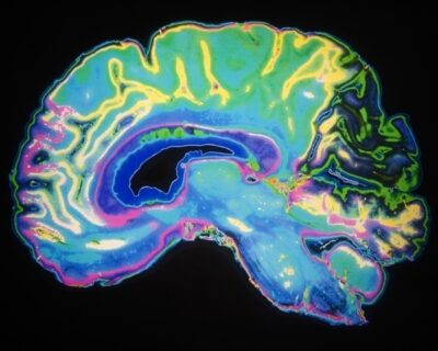 New 'sniff test' predicts recovery of consciousness in the brain
